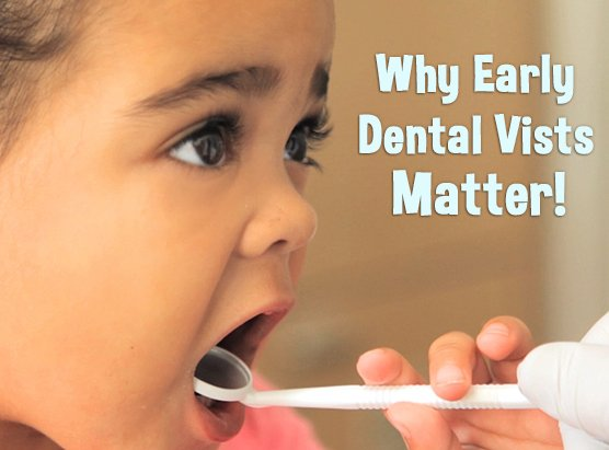 Why Early Dental Visits Matter